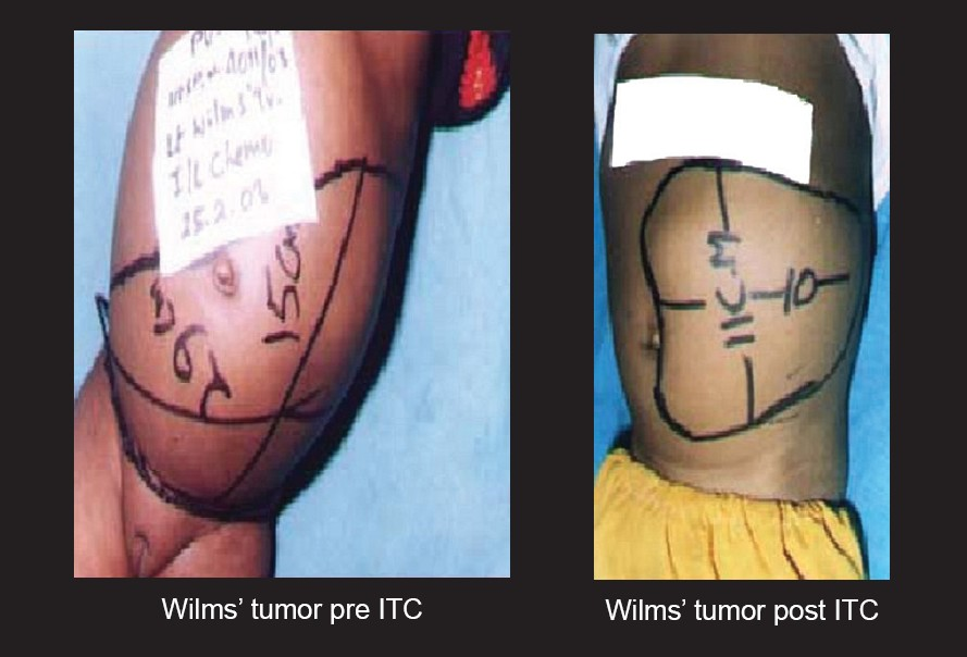 Figure 1: A Wilms' tumor case in Intratumoral Group