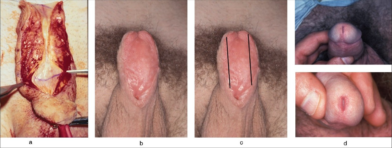 Figure 4: (a) Two-stage buccal mucosa substitution of BXO diseased penile urethra. BXO stricture opened, (b) good graft using both cheeks, 6 months post-op, (c) a 2.5-cm wide strip used for urethroplasty and excess graft discarded and (d) post-operative result showing excellent glans and meatus confi guration