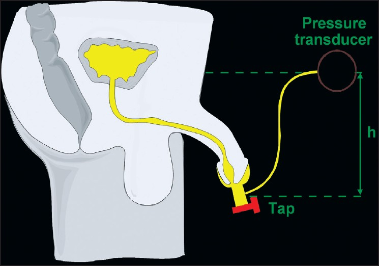 Figure 9: The basic principle of 'condom catheter' technique. Flow is interrupted by closing the tap and the pressure builds up. When fluid is stationary, the filled urethra acts as a catheter allowing bladder pressure to be measured