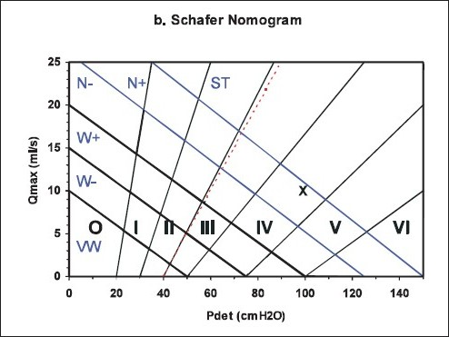 Figure 7: Different nomograms that have been proposed to categorize BOO. The red lines on 'a' and 'd' separating the obstructed region are identical. The equivalent line is shown as a dotted red line on 'b' and 'c' and is almost identical to the line separating grade II and grade III on the Schäfer nomogram 'b'. X is a patient with Qmax of 10 ml/s and pdet.Qmax of 100 cmH2O categorized throughout as obstructed.