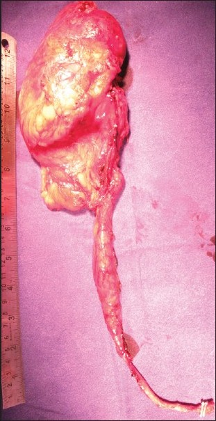 Figure 9: Completely removed nephroureterectomy specimen with clips at lower end