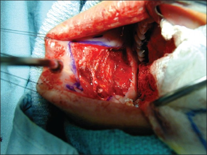 Figure 2: Buccal harvest site following removal of the graft. Care is taken to avoid Stensen's duct during dissection