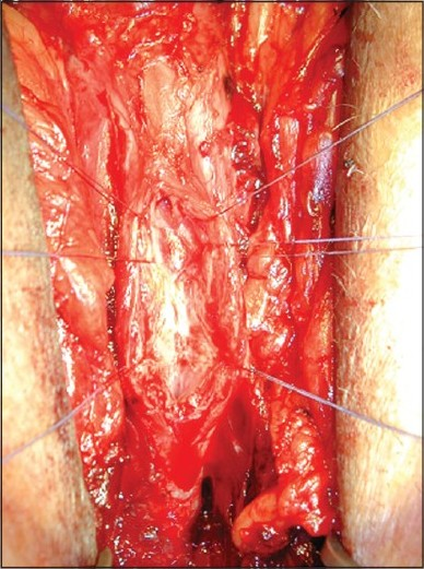 Figure 5: The native urethra is incised the entire length of the stricture and prepared to accept the buccal mucosa graft