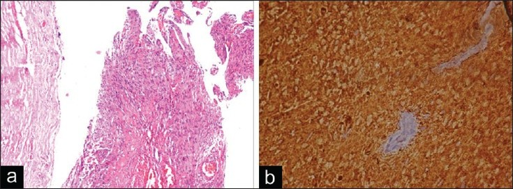 Figure 3: (a) HandE stained ×40 photomicrograph of the specimen showing a predominantly cystic tumor bounded by fibroconnective tissue capsule. The tumor was composed of Antoni A areas of compact spindle cells with focal nuclear palisading and few Antoni B areas of spindle to ovoid cells in a loosely textured matrix. Stroma showed many dilated thick-walled vessels and hemorrhage. (b) ×200 photomicrograph showing typical S-100 immunoreactivity of the schwannoma.
