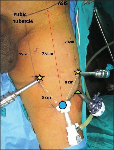 Figure 2: Robotic port placement- 12-mm camera port placed 25 cm from midpoint of inguinal ligament, 2 robotic parts (8 mm) placed 8 cm apart making isosceles triangle, 12-mm assistant port between the camera port and lateral robotic port
