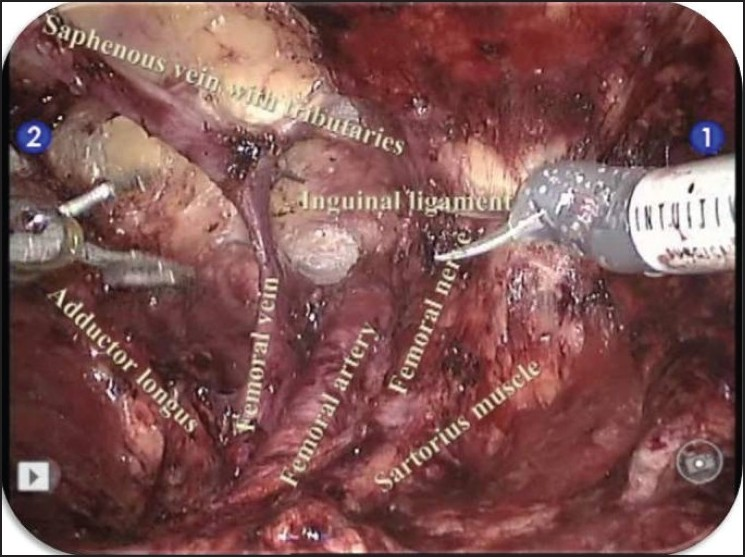 Robotic Assisted Inguinal Lymph Node Dissection A Preliminary