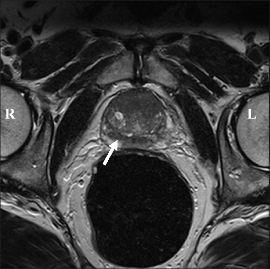 Figure 1: T2-weighted pelvic MRI of the prostate. Low-density areas can be seen anteriorly and in the peripheral zone on the right (arrowed). There were no reported enlarged lymph nodes