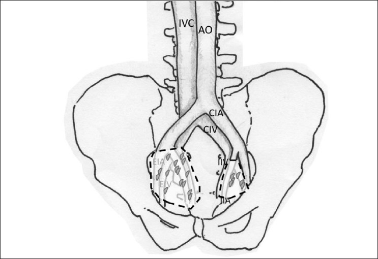 Figure 5: A standard LND comprises lymph nodes removed from the obturator fossa and the external iliac artery (region marked on the left side of pelvis). An extended LND comprises nodes from the external iliac artery and vein, obturator fossa, and medial and lateral to the internal iliac artery (region marked on the right side of pelvis). (IVC=inferior vena cava, AO=aorta, CIA=common iliac artery, CIV=common iliac vein, IIA=internal iliac artery, IIV=internal iliac vein, EIA=external iliac artery, EIV=external iliac vein.)