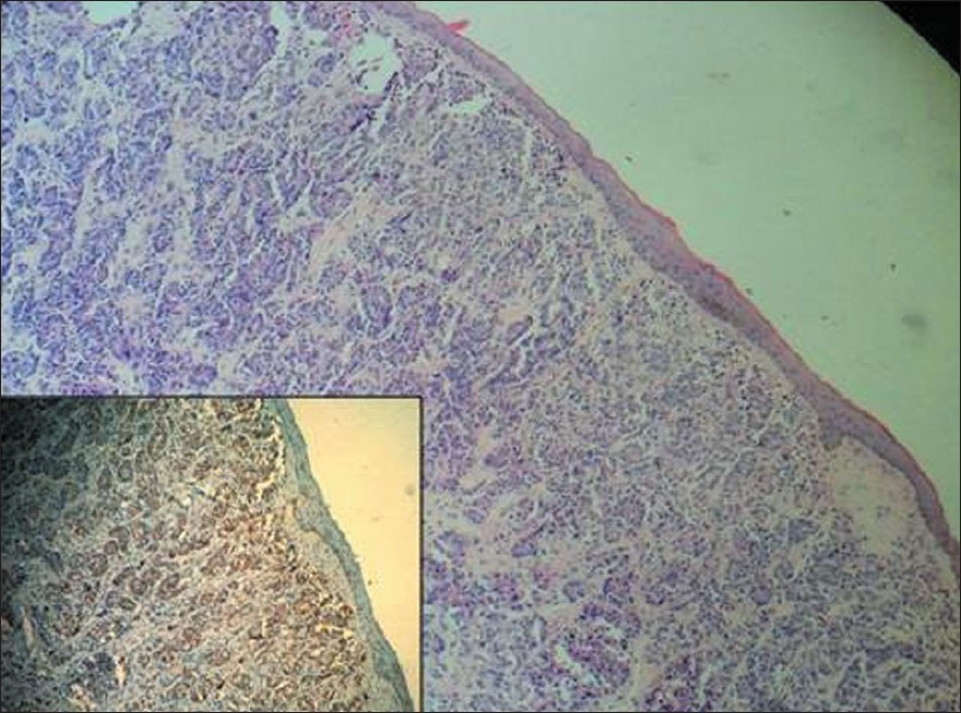 Figure 2: Photomicrograph shows histology of penile metastatic nodule. Inset showing positivity for prostate-specifi c antigen on immunohistochemical staining