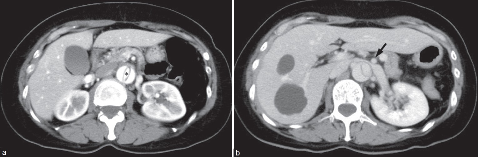 Figure 1: (a) Arterial contrast-enhanced CT demonstrates acute aortic dissection, without renal ischemia. True (*) and false lumens, contrast opacifi ed. (b) Venous CT demonstrates LRV compression between the enlarged aorta and SMA (arrow) with distal dilatation. Hepatic cysts are also shown