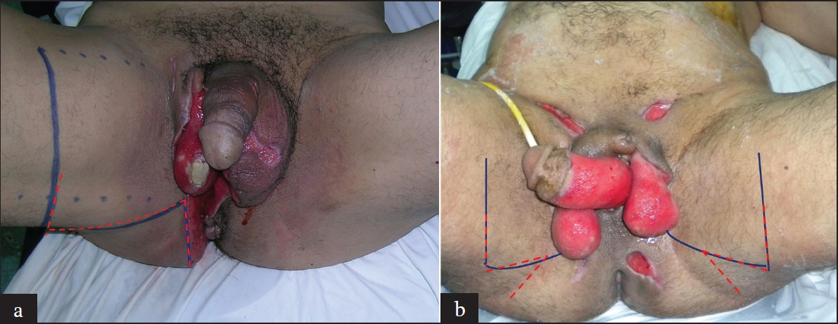 Figure 1: (a) The design of a right supero-medial thigh flap for a scrotal defect with a right test exposition (blue line). The discontinued red line corresponds to the design of the Z plasty for the closure of the donor area. (b) The design of bilateral supero-medial thigh flaps for the reconstruction of the whole scrotum (blue lines). The two asymmetric Z plasties for closure of the donor areas are marked with red lines