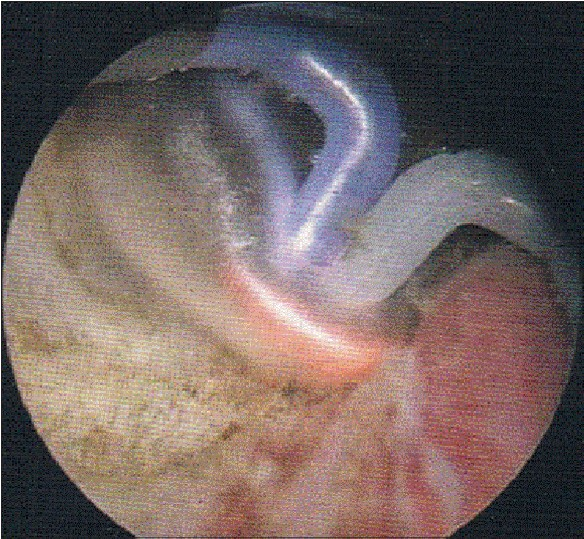 Figure 2: Endoscopic view during TUVP