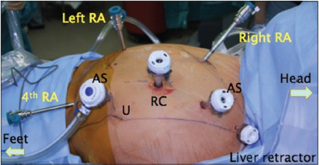 Robotic Nephron Sparing Surgery For Renal Tumors Current