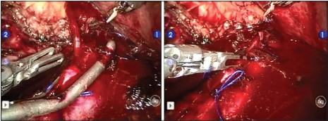Figure 2: Intraoperative bleeding from tangentially clamped inferior vena cava (IVC) managed with prograsp in 4th-arm that was in the fi eld as a precaution. As laparoscopic Satinsky clamp was removed from sutured IVC, bleeding between sutures (left) was immediately controlled by grasping with 4th-arm instrument (right) until additional sutures could be placed