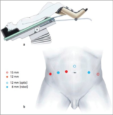 Figure 1: (a and b) patient positioning and port placement