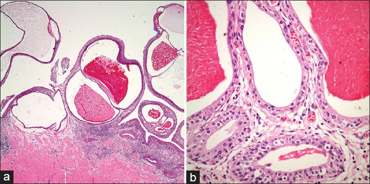 Figure 2: Florid ureteritis cystica with chronic inflammation in lamina propria. Large and small cysts lined by flattened urothelial cells leading to polipoid mucosal protrusions into the lumen; some filled with eosinophilic secretion ((a) H and E, ×40; (b) H and E, ×400)