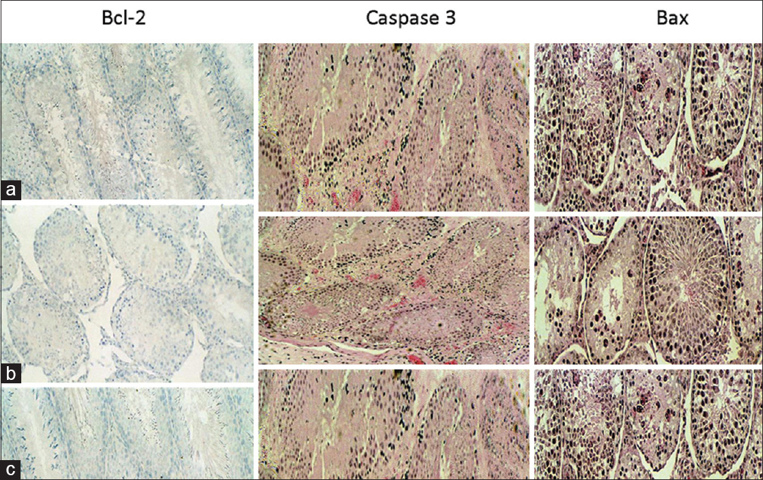 Figure 2: Immunohistochemical staining with Bcl-2, caspase-3 and Bax (�0) of rats fed normal diet (a), zinc deficient diet (b) and zinc supplementation diet (c). These staining reactions show the following: *Intense staining with Bcl-2 of mature spermatozoa *Intense staining with Bax (black) and caspase-3 (red) consistent with increased apoptosis of the early germ cells such as spermatogonia, spermatocytes and spermatids associated with zinc deficiency *intense staining with Bcl-2 of mature spermatozoa in the seminiferous tubule of rats fed with zinc supplementation diet