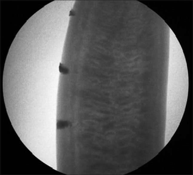 Figure 3: Radiographic appearance of model before puncture