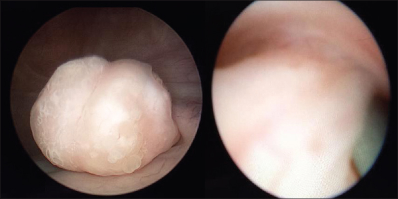 Figure 2: Cystoscopic finding (left) and finding at ureteroscopy showing the