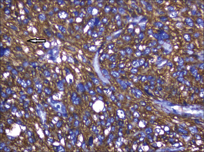Figure 2: Immunohistochemistry (magnification ×100) showing strong smooth muscle actin cytoplasmic positivity (marked by an arrow)