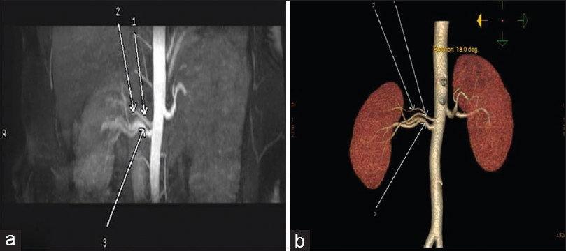 Figure 2: (a and b) Supernumerary renal arteries noncontrast-enhanced magnetic resonance angiography and computed tomography angiography three renal arteries on the right side and single renal artery on the left side are seen in coronal maximum intensity projection image of noncontrast enhanced magnetic resonance angiography (a) and volume-rendered image on computed tomography angiography (b)