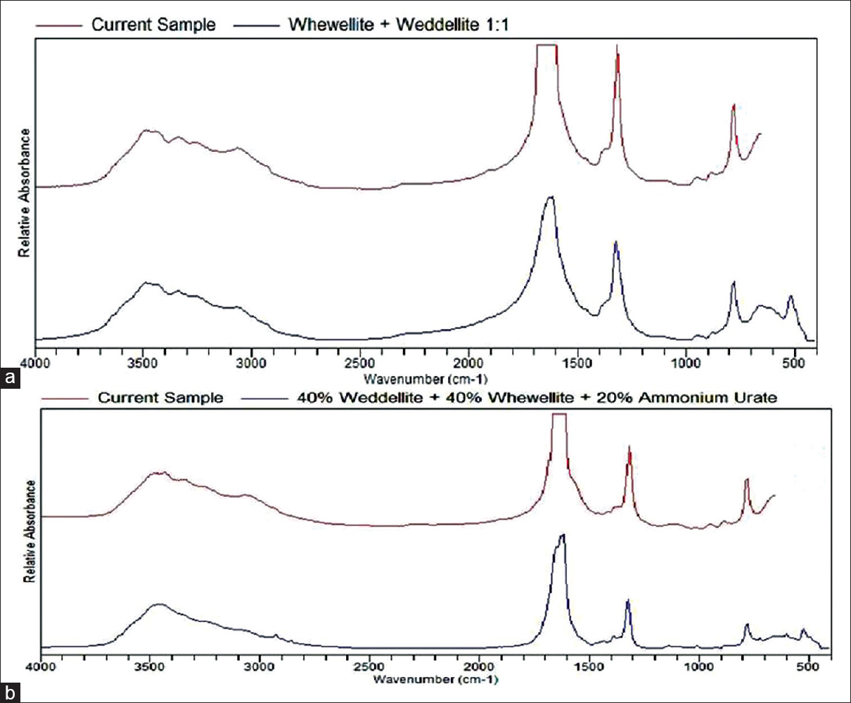 Figure 1: (a) Fourier transform infrared spectrum profile of a mixed calcium oxalate stone showing major peaks. (b) Fourier transform infrared spectrum profile of a mixed calcium oxalate with uric acid stone showing major peaks
