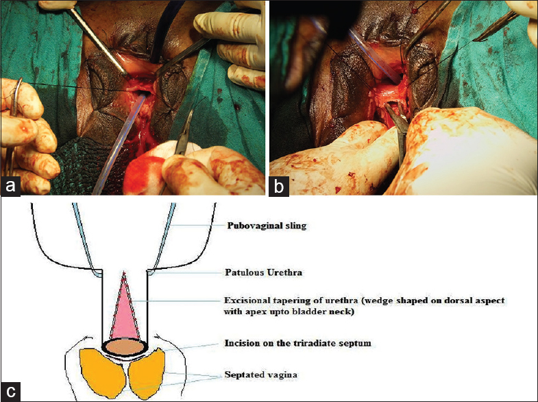Figure 4: (a) Perimeatal-semicircular incision on dorsal aspect of wide patulous urethra. (b) Incision on the triradiate septum of introital mucosa at the confluence of both hemivagina and external urethral orifice for the placement of pubovaginal sling. (c) Line diagram of surgical procedure