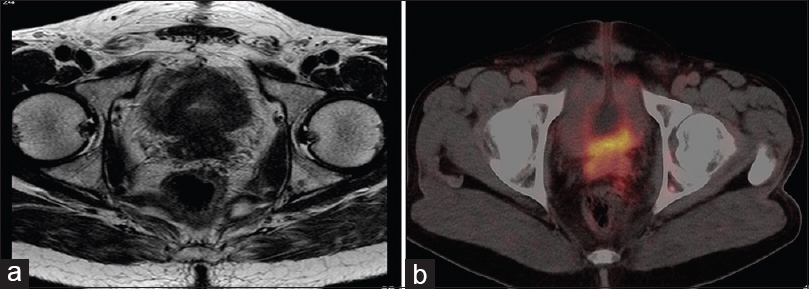 Figure 2: (a) Axial fat-saturated T2-weighted MR image shows hypointense prostate growth invading the bladder base as well as the seminal vesicles. (b) On axial <sup>68</sup>Ga-PSMA PET/CT, there is significant tracer accumulation in the bladder base and seminal vesicles, confirmative of the involvement