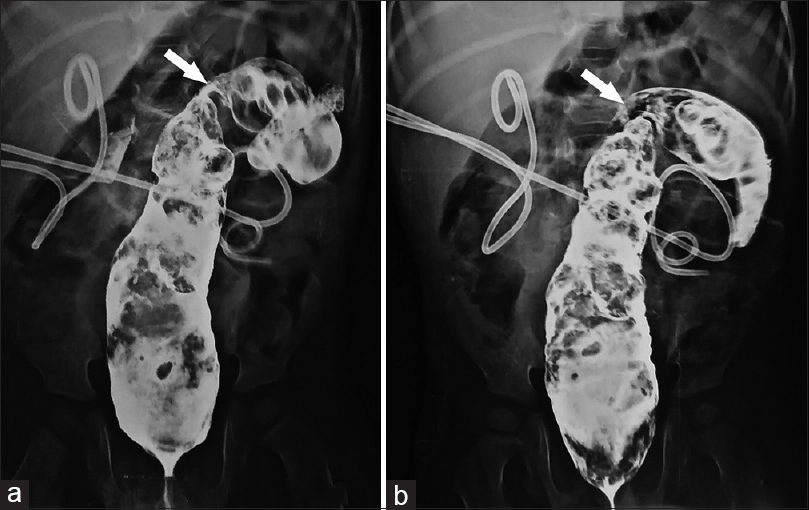 Figure 2: Barium enema (a and b) showing dilated rectum and proximal sigmoid colon with a short segment focal area of narrowing (arrows) in the region of sigmoid colon with bilateral percutaneous nephrostomy tubes <i>in situ</i>