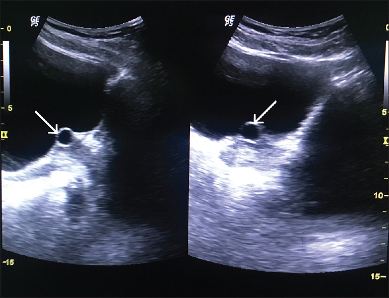 Brunn's cyst: A rare cause of lower urinary tract symptoms