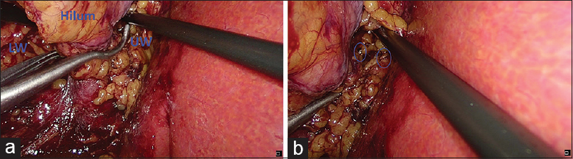 Figure 6: Two-window technique for application of Satinsky clamp across hilum in cases of laparoscopic partial nephrectomy. (a) Satinsky clamp across hilum with adequate exposure in both the lower and upper window (LW, UW). (b) Safe application of clamp to visualize both the arms before final application