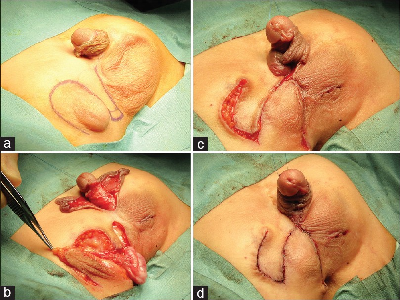 Figure 1: Intraoperative findings of surgical correction of ectopic scrotum and penile torsion. (a) Rotation flap was designed for scrotoplasty. (b) The rotation flaps and right testis were mobilized after correction of the penile torsion. (c) The flaps were switched, and the right testis was fixed in the right rotated  hemiscrotum. (d) Byars flap was crisscrossed for skin covering of the penis
