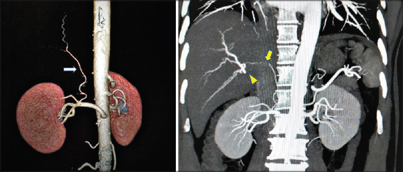 Figure 2: Left panel: CT angiography showing the distal origin of accessory right hepatic artery from right renal artery (arrow). Right panel: Coronal section of the abdomen showing accessory right hepatic artery coursing along the right crus of diaphragm and supplies segment VII of the right lobe of the liver (arrow). Normal  right hepatic artery division is also seen (arrowhead)